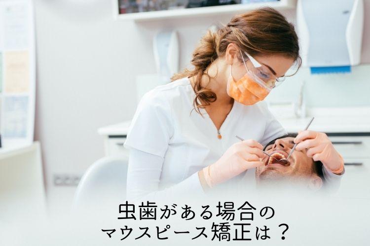 虫歯がある場合のマウスピース矯正は?香川県高松市の吉本歯科医院