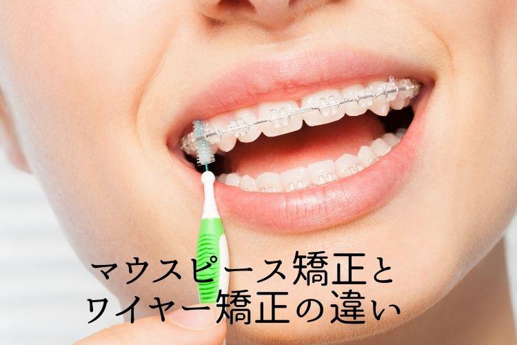 マウスピース矯正とワイヤー矯正の違い 香川県高松市の吉本歯科医院