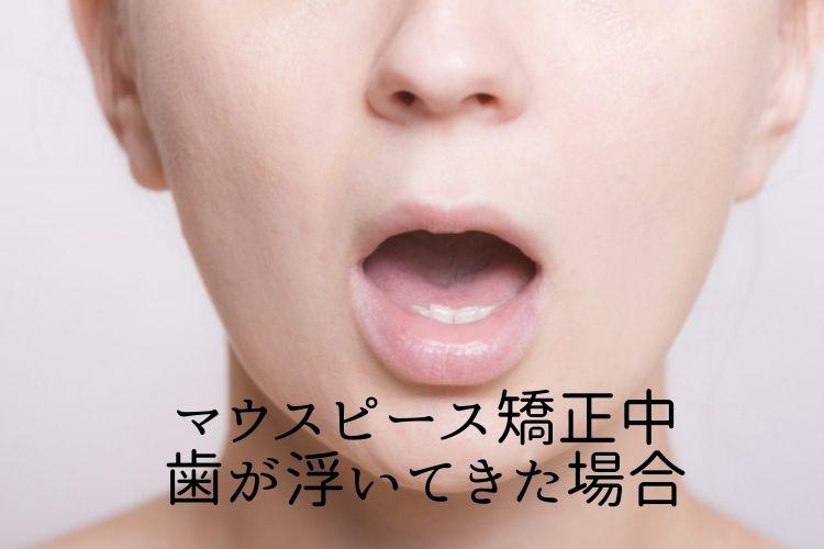 マウスピース矯正中 歯が浮いてきた場合 香川県高松市の吉本歯科医院