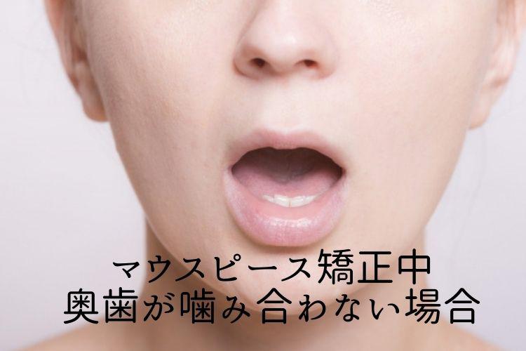 マウスピース矯正中 奥歯が噛み合わせない場合 香川県高松市の吉本歯科医院