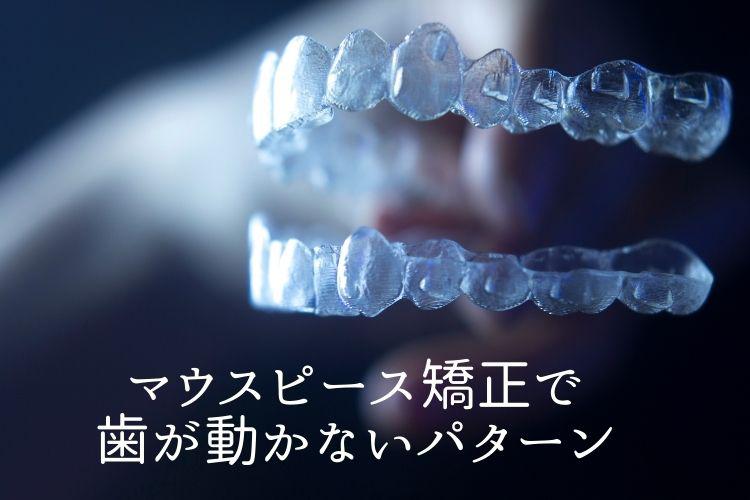 マウスピース矯正で歯が動かないパターン