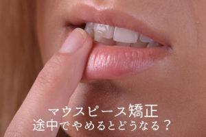 マウスピース矯正 途中でやめるとどうなる?|香川県高松市の吉本歯科医院