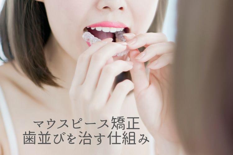 マウスピース矯正、歯並びを治す仕組み|香川県高松市の吉本歯科医院