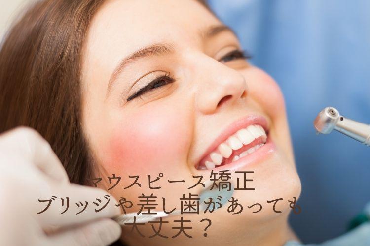 マウスピース矯正、ブリッジや差し歯があっても大丈夫?香川県高松市の吉本歯科医院