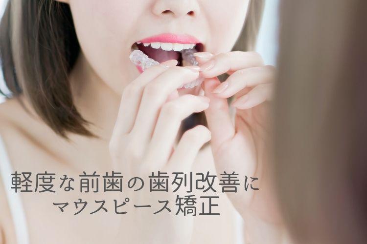 軽度な前歯の歯列改善にマウスピース矯正|香川県高松市の吉本歯科医院