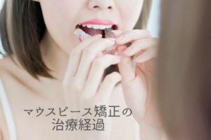 マウスピース矯正の治療経過|香川県高松市の吉本歯科医院AC