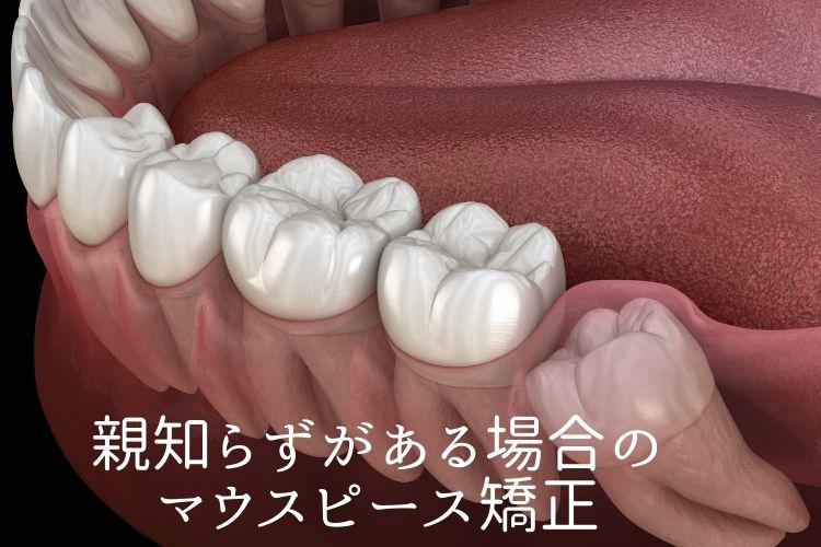 親知らずがある場合のマウスピース矯正 香川県高松市の吉本歯科医院