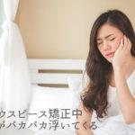 マウスピース矯正中 装置がパカパカ浮いてくる 香川県高松市の吉本歯科医院