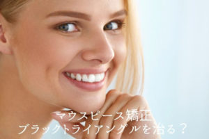 マウスピース矯正 ブラックトライアングル治る?香川県高松市の吉本歯科医院