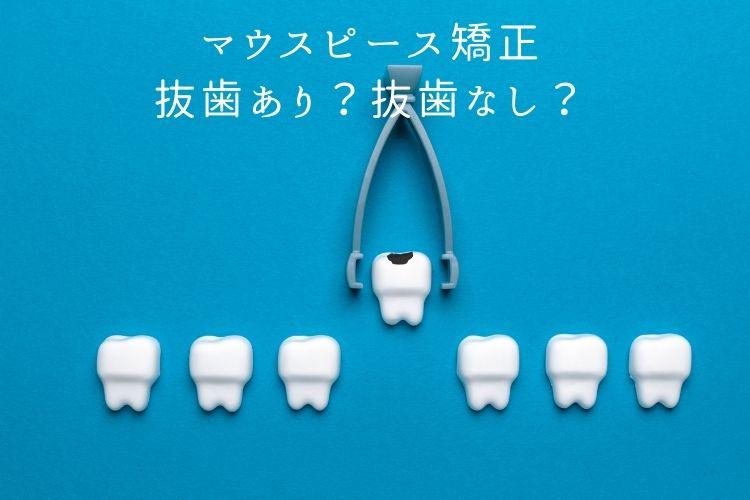 マウスピース矯正 抜歯あり?抜歯なし?香川県高松市の吉本歯科医院