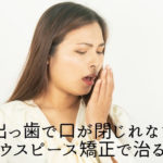 出っ歯で口が閉じれない|マウスピース矯正で治る?香川県 高松市の吉本歯科医院