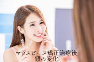 マウスピース矯正治療後の顔の変化 香川県高松市の吉本歯科医院