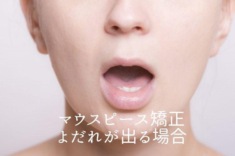 マウスピース矯正よだれが出る場合|香川県高松市の吉本歯科医院