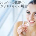 マウスピース矯正中装置がゆるくなった場合|香川県高松市の吉本歯科医院