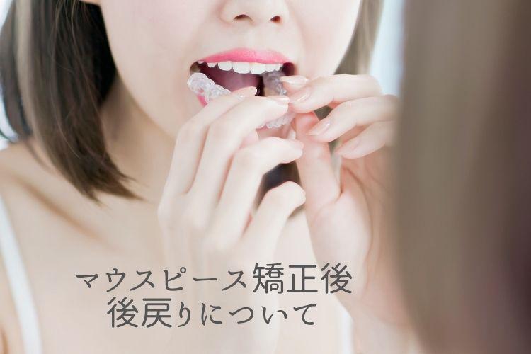 マウスピース矯正後の後戻りについて|香川県高松市の吉本歯科医院
