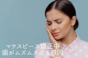 マウスピース矯正中歯がムズムズする原因|香川県高松市の吉本歯科医院