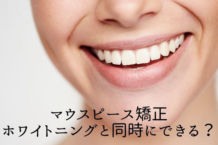 マウスピース矯正 ホワイトニングと同時にできる?香川県高松市の吉本歯科医院