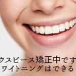 マウスピース矯正中ですがホワイトニングはできる?香川県高松市の吉本歯科医院