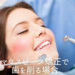 マウスピース矯正で歯を削る場合|香川県高松市の吉本歯科医院