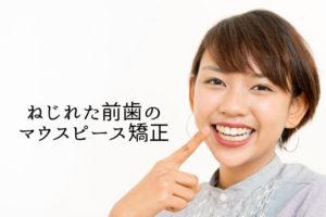 ねじれた前歯のマウスピース矯正|香川県高松市の吉本歯科医院