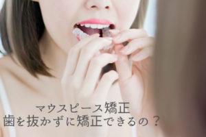 マウスピース矯正 歯を抜かずに矯正できるの?香川県高松市の吉本歯科医院