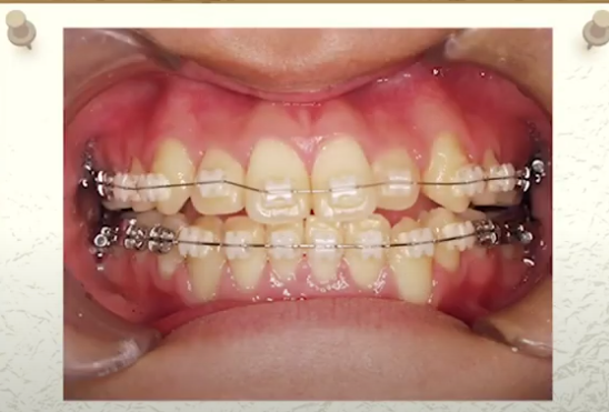 高松市のマウスピース矯正なら吉本歯科医院